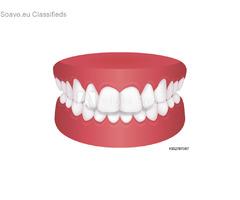 Straighten Teeth